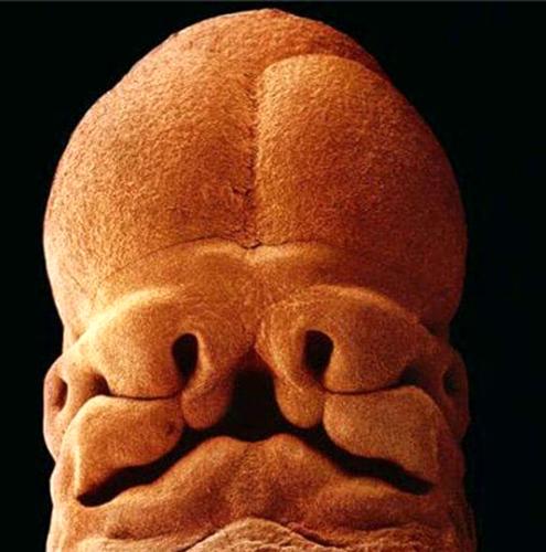Slika br. 10 - Nakon pet sedmica veličina čovjeka je 9 milimetara, primjećuje se formiranje očiju,  nozdrva i usta