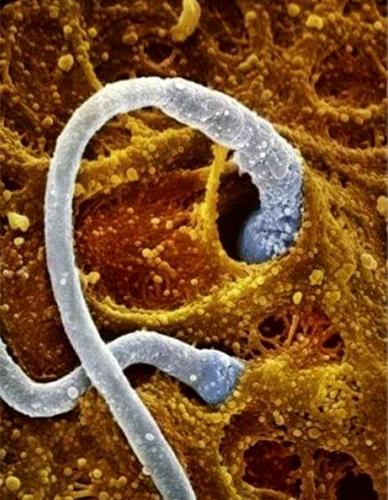 Slika br. 3 - Dva spermatozoida se zakačuju za jajnu ćeliju